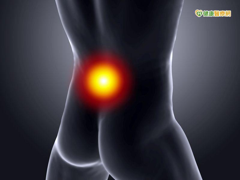 走路臀腿莫名疼痛 梨狀肌症候群惹禍