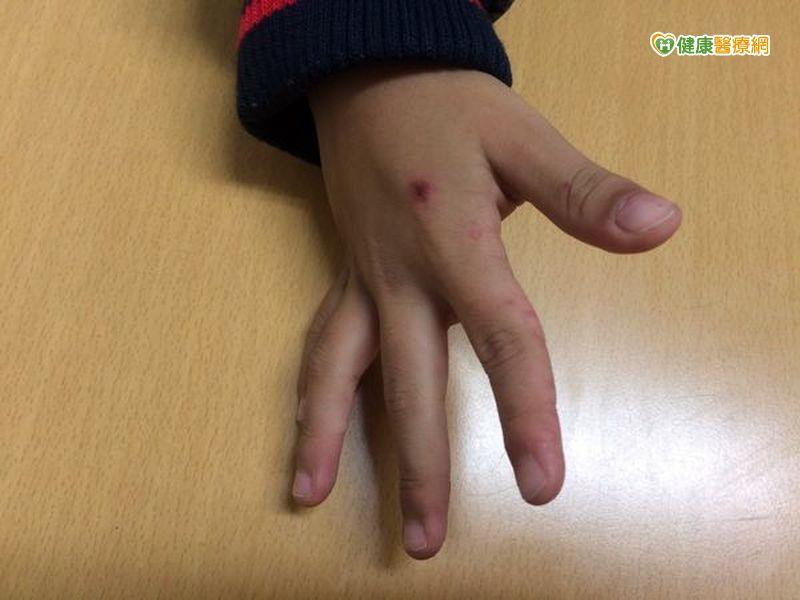 首例腸病毒D68型重症 男童肢體麻痺