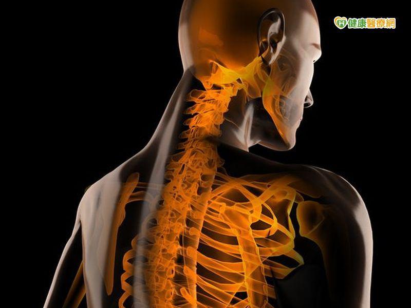 肩關節長期無力 原來是椎間盤病變惹禍