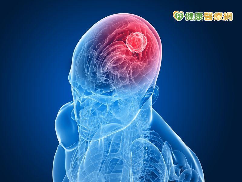 記憶短期大幅衰退 小心腦瘤威脅!