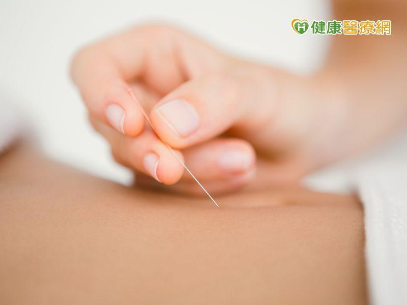 中醫針灸埋線減重 哪部位會最先瘦?