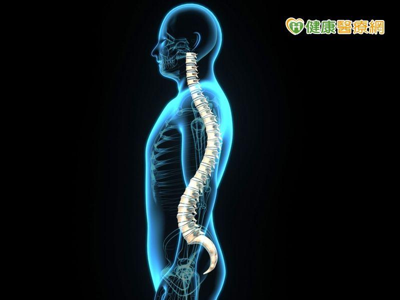 椎間盤突出長骨刺 何時需要手術?