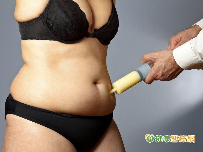 腹部抽脂顧健康? 醫:無幫助